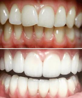 Реставрация зуба прямым методом